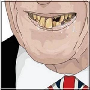 badteeth